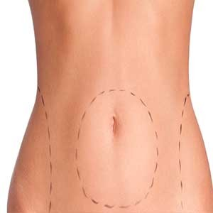 WORK AFTER LIPOSUCTION