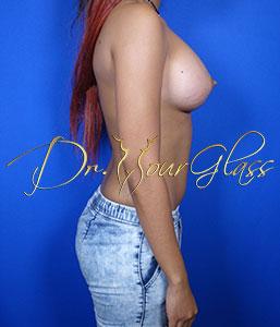 wonder-breast-augmentation-dr-hourglass-wilberto-cortes-11090-13
