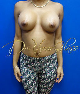wonder-breast-augmentation-dr-hourglass-wilberto-cortes-11108-002