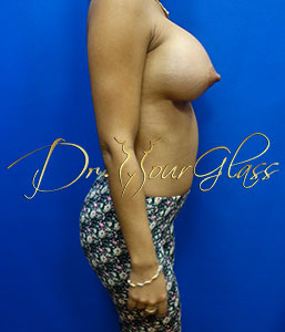 wonder-breast-augmentation-dr-hourglass-wilberto-cortes-11108-004