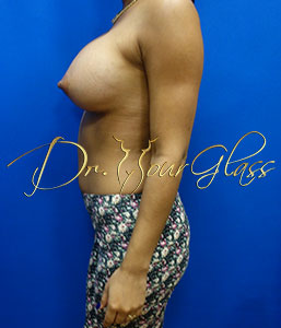 wonder-breast-augmentation-dr-hourglass-wilberto-cortes-11108-006