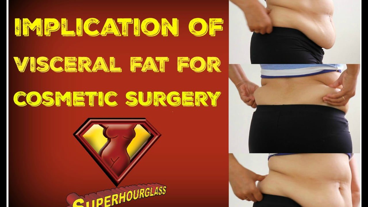 Visceral Fat Surgery 57