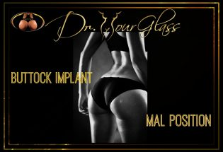Buttock implant malpositions after surgery