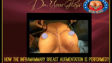 HOW AN INFRAMAMMARY APPROACH BREAST AUGMENTATION IS PERFORMED