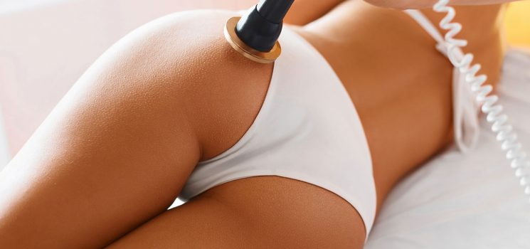 Maintaining the results after liposuction