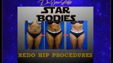 Redo hip augmentation