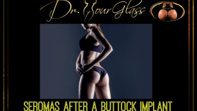 Seromas after a buttock implant