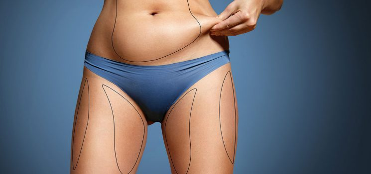 What you need to know before undergoing abdominal liposuction