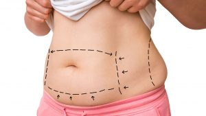 Liposuction and obesity