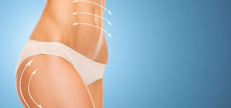 What are the qualifications required for a surgeon to perform liposuction