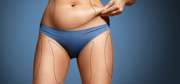 When to seek medical help for tummy tuck complications