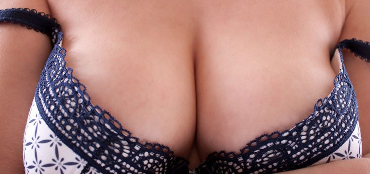 Scars After Mastopexy