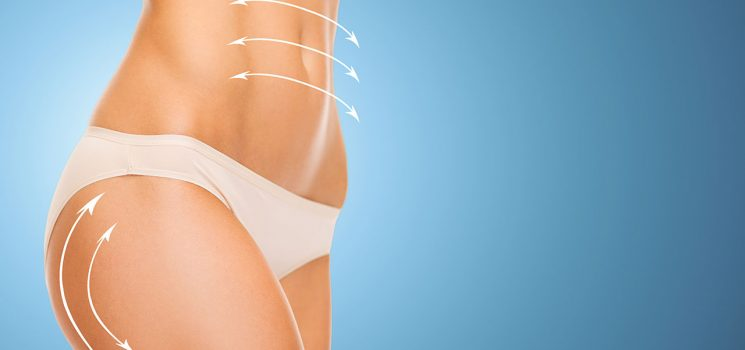 Side Effects and Potential Complications After Liposuction