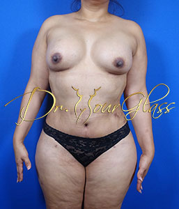 wonder-breast-augmentation-dr-hourglass-wilberto-cortes-11091-01