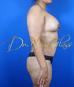 wonder-breast-augmentation-dr-hourglass-wilberto-cortes-11091-02