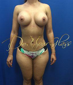 wonder-breast-augmentation-dr-hourglass-wilberto-cortes-11100-1