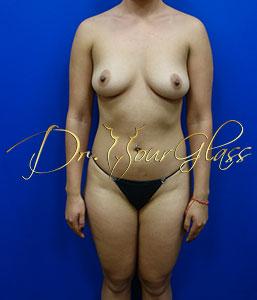 wonder-breast-augmentation-dr-hourglass-wilberto-cortes-11100-2