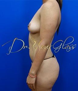 wonder-breast-augmentation-dr-hourglass-wilberto-cortes-11100-3