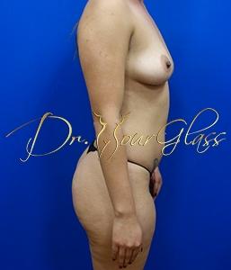 wonder-breast-augmentation-dr-hourglass-wilberto-cortes-11100-4